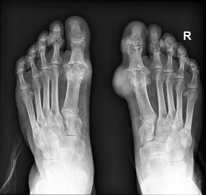 Gout at Toe - From Dr Bahman Rasuli