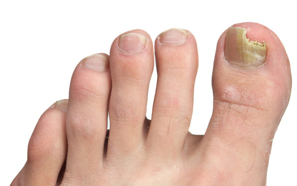 How to Identify and Address Your Toenail Problems